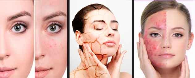 humidificador-para-el-acne
