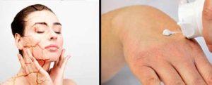humidificador para piel seca